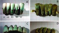 Převratný nález. V Itálii našli zubní protézu starou čtyři století