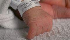 Rodiče žalují nemocnici. Za postižení dcery může zkažený porod, tvrdí