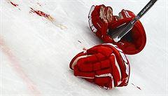 Čtrnáctiletý Rus zemřel. Během hokejového tréninku se totiž pobil se spoluhráčem
