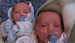 Tajemství dvojčat: Proč se jich nyní rodí méně a jak jsou vzájemně propojena?