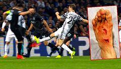 VIDEO Brutální zákrok: fotbalista má díry v nártu, přesto zápas dohrál, stejně jako soupeř