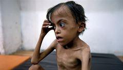 Jemenu může podle OSN hrozit nová vlna cholery