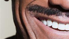 Pohotovost není samozřejmost. Kolik si zaplatíme za hezké zuby?