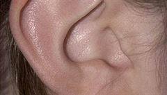 Od dvaceti se sluch zhoršuje, poruchou trpí každý dvacátý dospělý