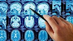 Záhadná nemoc v Kanadě připomíná 'havanský syndrom.' Vědci si nad vysvětlením lámou hlavu