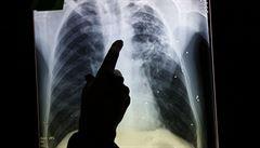 Zázračné materiály budoucnosti: tuberkulóza by se mohla léčit pomocí nanočástic