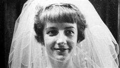 Případ fotografky vedl k sebevraždě předního virologa. Před čtyřiceti lety naposledy děsily pravé neštovice