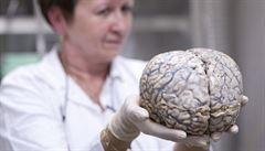 Mužský a ženský mozek neexistuje, tvrdí vědci. Rozdíly v chování jsou výsledkem kulturního vývoje