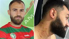 VIDEO: Kurd, který pořezal turecké fotbalisty žiletkou, dostal doživotní zákaz