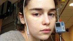 'Umírá třetina postižených.' Představitelka Daenerys ze Hry o trůny ukázala fotografie po operaci mozku