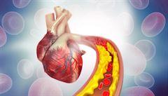 Lékem na cholesterol jsou statiny. Léky účinné i obávané