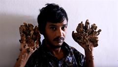Bangladéšský 'stromový muž' chce amputaci rukou, bolí ho