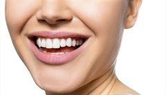 Bakterie s námi cvičí. Může narušená ústní mikroflóra poznamenat oběhový systém a srdce sportovců?