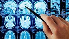 Léčba epilepsie je v Česku kvalitní, scházejí ale sociální pracovníci