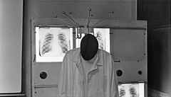 Fotografický um Petra Helbicha. Plicní lékař podává svědectví nejen o Sudkovi