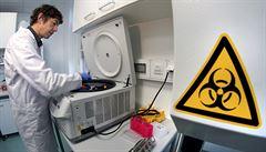 Mění se pravidla testů na koronavirus. Některé kraje začaly s domácími odběry vzorků