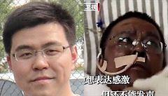'Anděl, jenž svedl boj se smrtí.' V Číně zemřel lékař, kterému po nákaze koronavirem ztmavla pleť