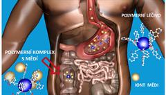 ZÁZRAČNÉ MATERIÁLY BUDOUCNOSTI: Kumulace mědi v těle je nebezpečná. Vědci pracují na nové léčbě