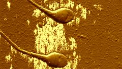 Bez ocásku. Vědci našli prý nejstarší zkamenělou spermii
