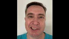 Šmucler po očkování Pfizerem údajně ochrnul na jednu část tváře. Je to už OK, bral jsem na to prášky, říká