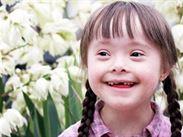 3 Down syndrom u dítěte