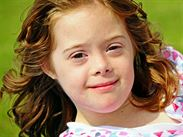 3 Down syndrom ve věku cca 11 let