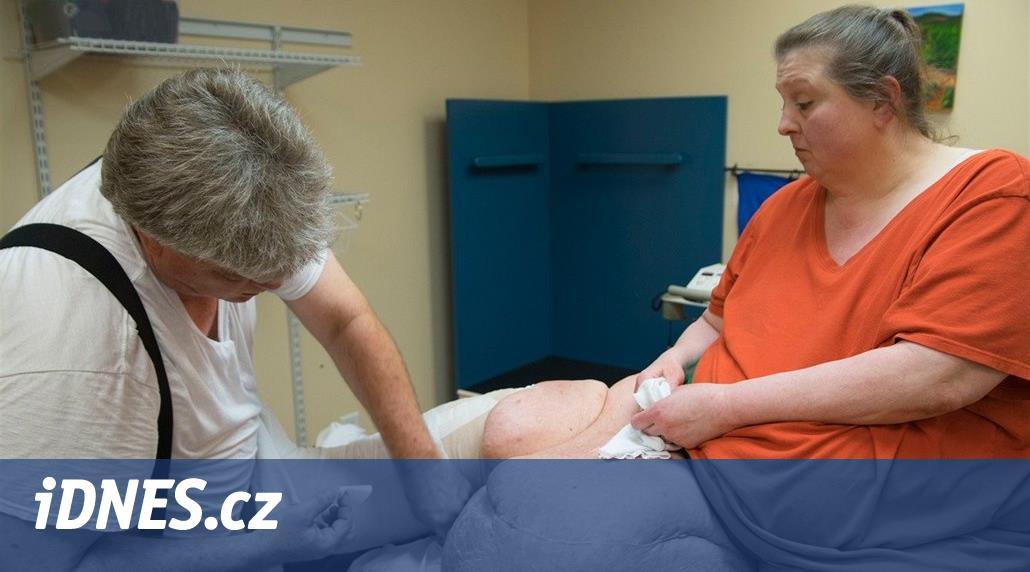 Její noha s lymfomem váží 68 kilogramů. Manžel Janice miluje